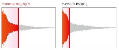Công nghê Harmonic -ImagingXL của Kawai CA95